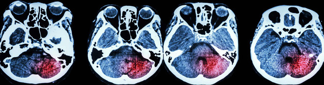 Brain Injury Imaging Picture