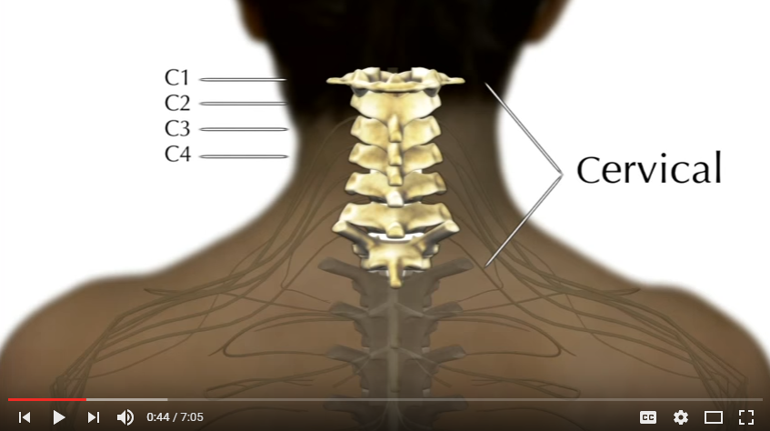 early vs late reduction of cervical spine injury A spinal cord injury (sci) is damage to the spinal cord that causes temporary or permanent changes in its function symptoms may include loss of muscle function, sensation, or just over half of injuries affect the cervical spine, while 15% occur in each of the thoracic spine, border between the thoracic.