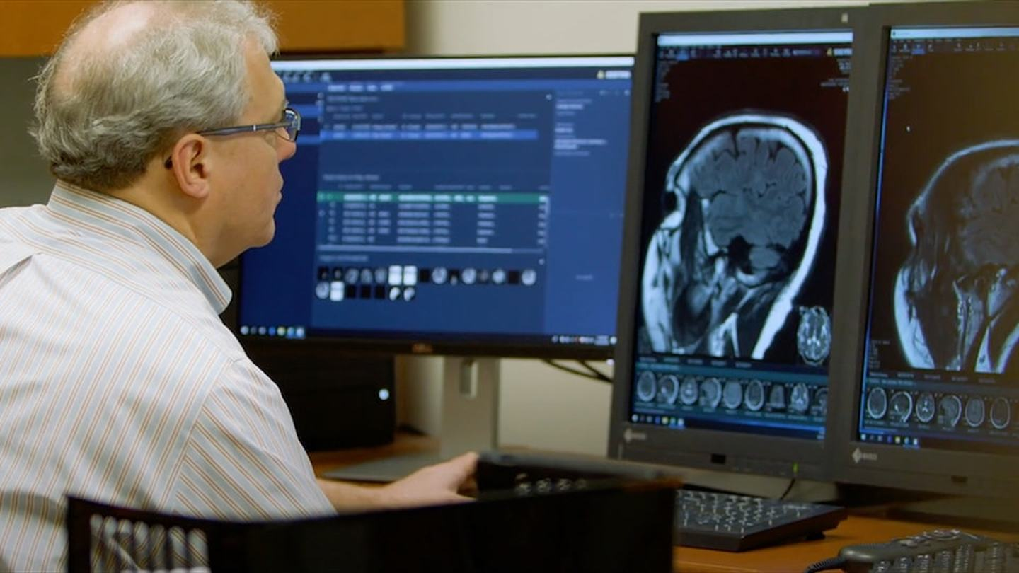 Director of Neuroimaging Guy Buckle reviews brain scans of multiple sclerosis patient